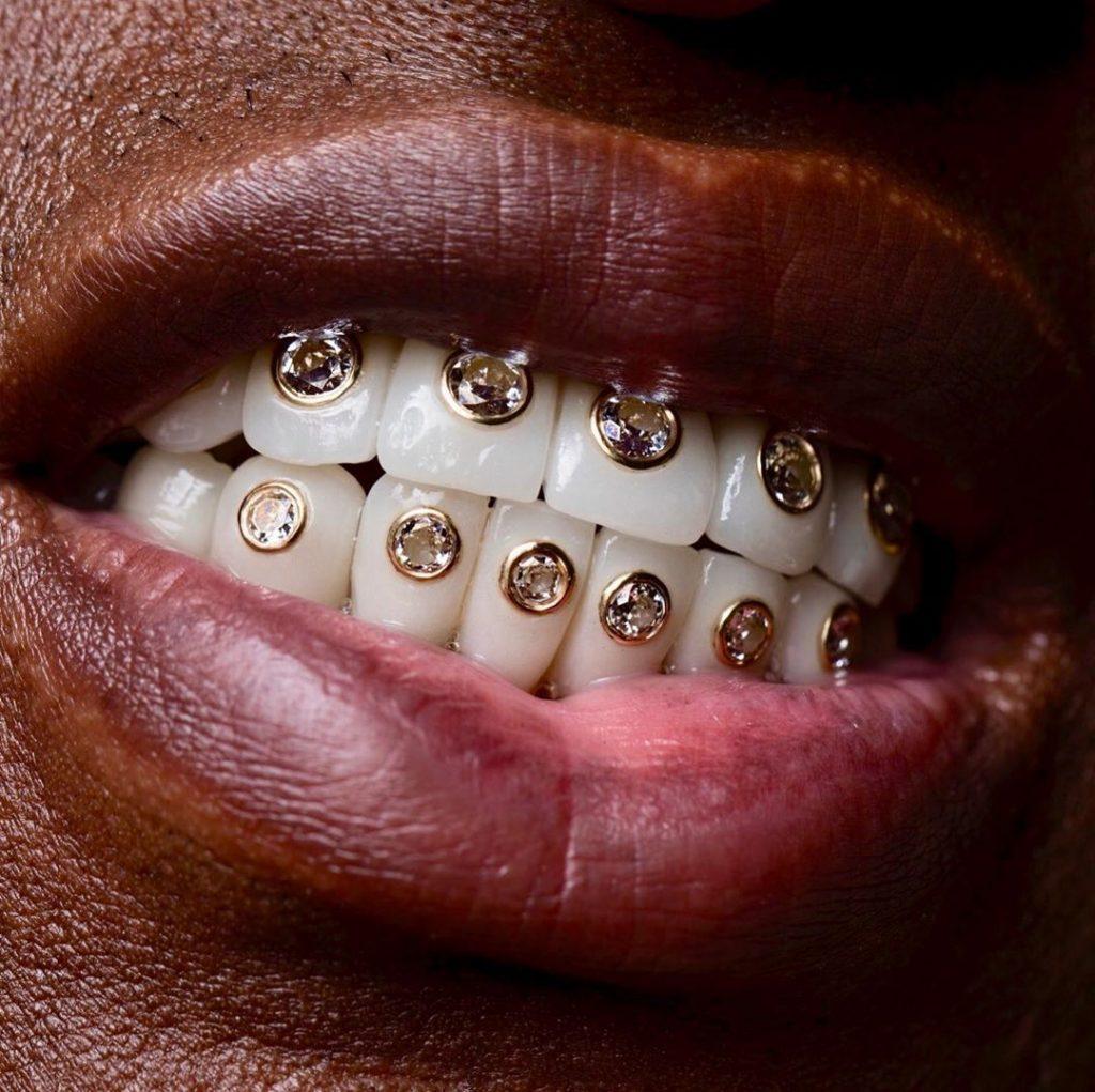 Rapper Birdman Encrusts Diamonds On His Teeth